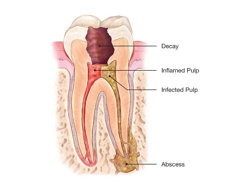 What Exactly is a Root Canal?